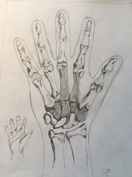"""This illustration by Edwards will appear in the new edition of her book """"Developmental & Functional Hand Grasps."""""""