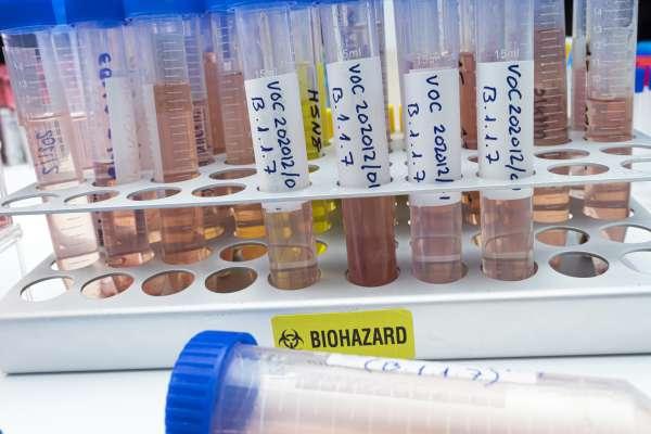 samples in lab