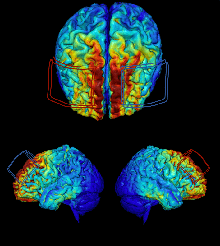 An MRI-derived model of electric current flow in an individual's brain. Red and blue outlines represent the size and position of electrodes placed on the scalp to deliver transcranial direct current stimulation to the brain. Electrical current is injected at the location of the red outline and returned at the location of the blue outline during stimulation.